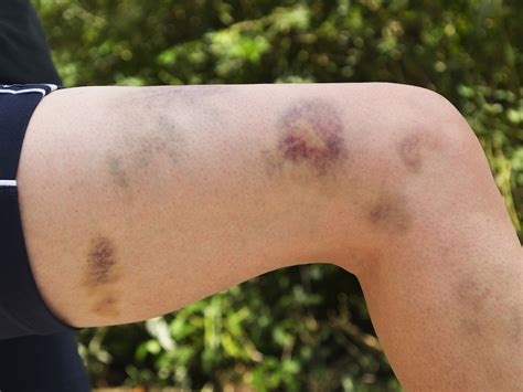 Bruise Causes, How to Reduce Bruising and Home Remedies