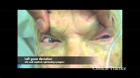 Periodic alternating gaze deviation and nystagmus in