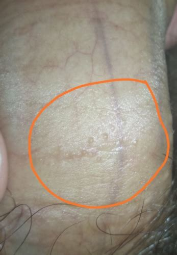 Bumps on penis shaft   Penis Disorders   Forums   Patient